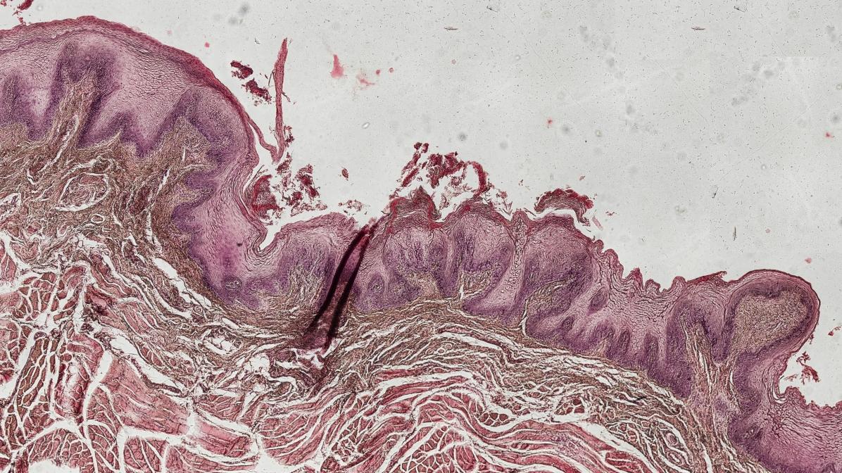 Anatomie / Histologie / Pathologie - Zunge
